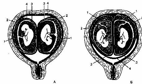"""Разнояйцовая двойня. А. Каждый плод имеет собственную плаценту (1), амнион (2), хорион (3), decidua capsularis (4); Б. Плаценты (1) почти соприкасаются, каждый плод имеет собственный амнион (2) и хорион (3), decidua capsularisобщая (4) [из B.И. Бодяжина и др. """"Акушерство"""" М.: Литера,1995]"""