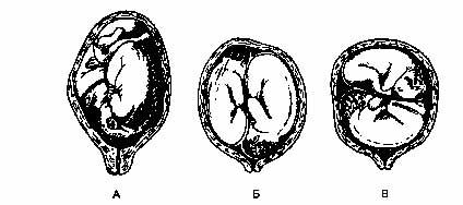 Положение близнецов в матке. А - оба плода предлежат головкой, Б - один плод предлежит головкой, другой - тазовым концом. В-оба плода в поперечном положении