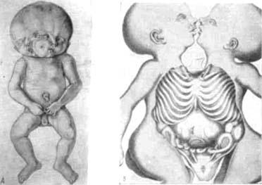 Соединенные близнецы. А - частичное раздвоение головы; Б - надпупочное соединение.