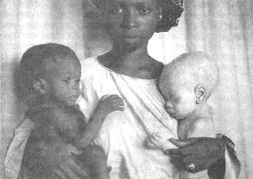 Сходство и различие в фенотипических проявлениях. Два близнеца, один из которых альбинос