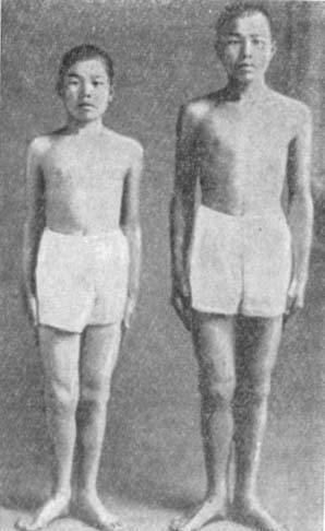 Сходство и различие в фенотипических проявлениях. Пара однояцевых близнецов в возрасте 15 лет. До 5-летнего возраста эти близнецы были почти одинакового роста. Но потом левый из них задержался в росте, вероятно, вследствие нарушения функции гипофиза.